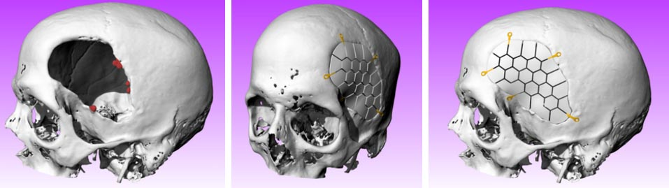 Skull model renderings before surgery